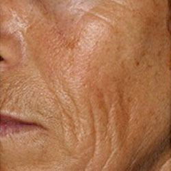 before collagen induction